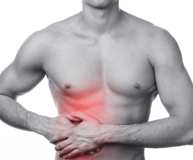 rib-pain-costochondritis-indianapolis
